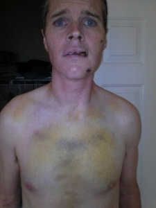 What I looked like several days after being hit by an SUV while riding my bicycle